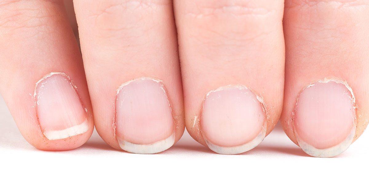 spröda naglar brist