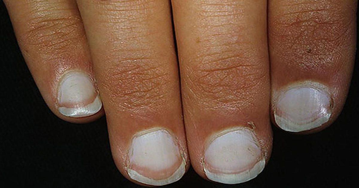 vita fläckar på naglarna 1177