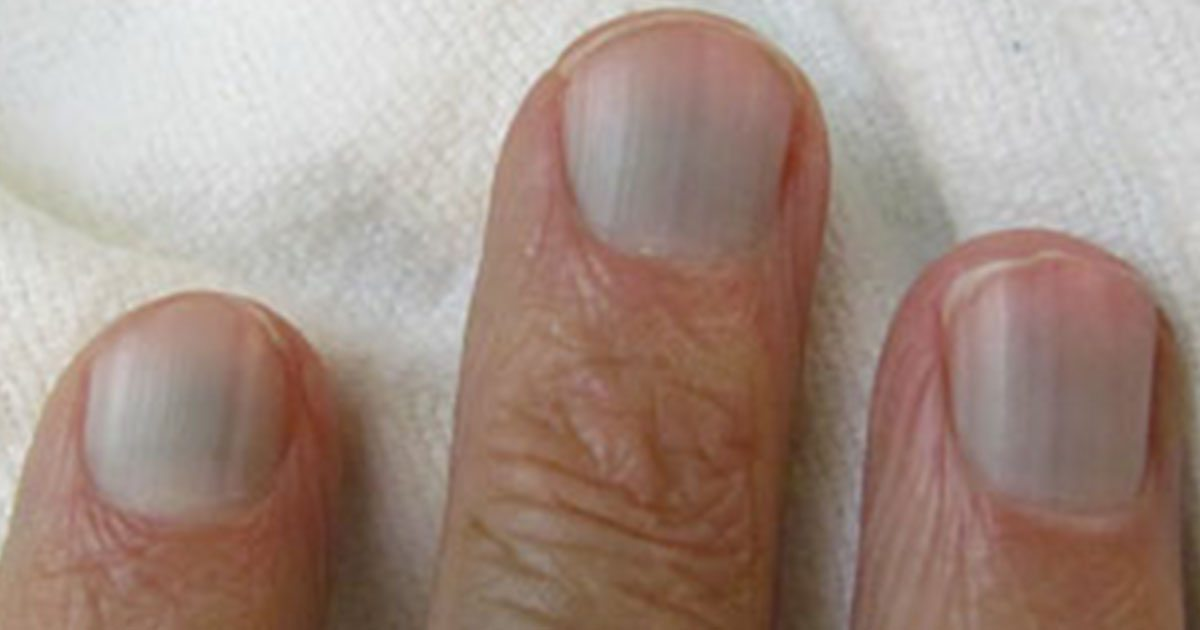 hårda naglar beror på