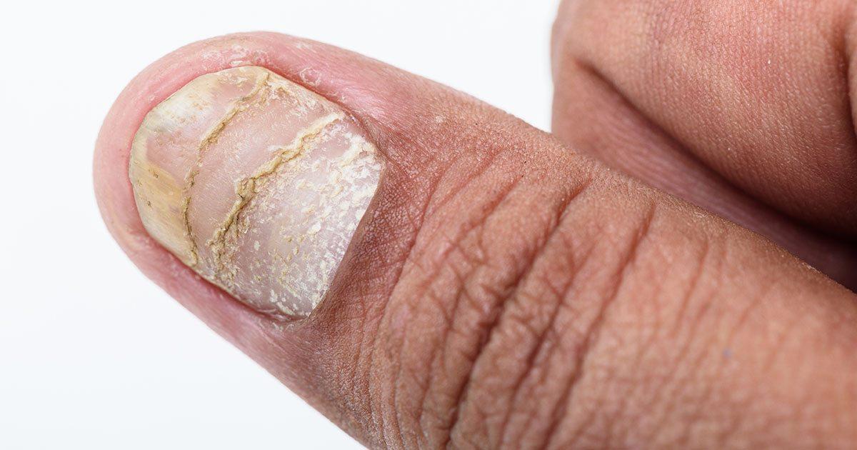 ojämna naglar