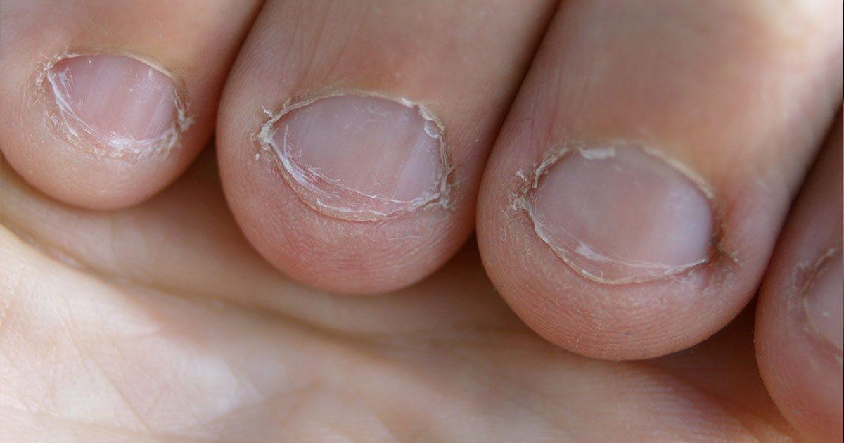 inflammation under nagel