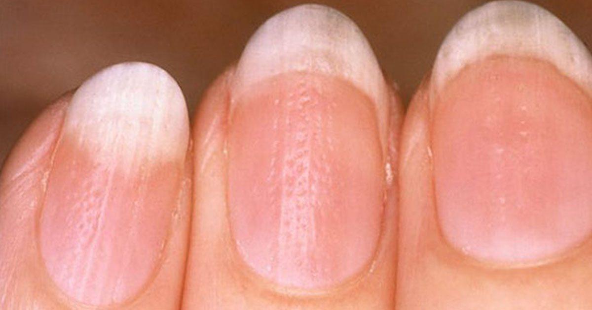 räfflade naglar symptom
